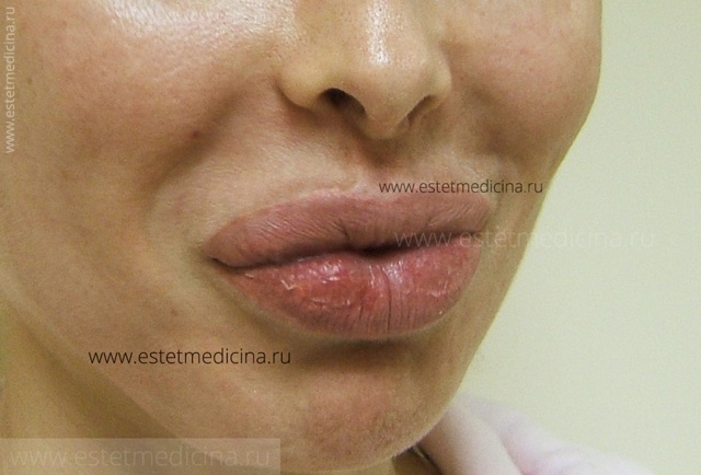 Удаление биополимера из губ: цена, послеоперационный период, отзывы, осложнения, техника операции