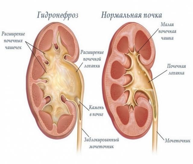 Уростаз почки справа или слева: что это такое, причины, симптомы, диагностика, лечение