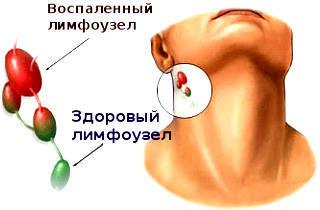 Что делать, если опухло ухо: внутри, снаружи, мочка, возле челюсти
