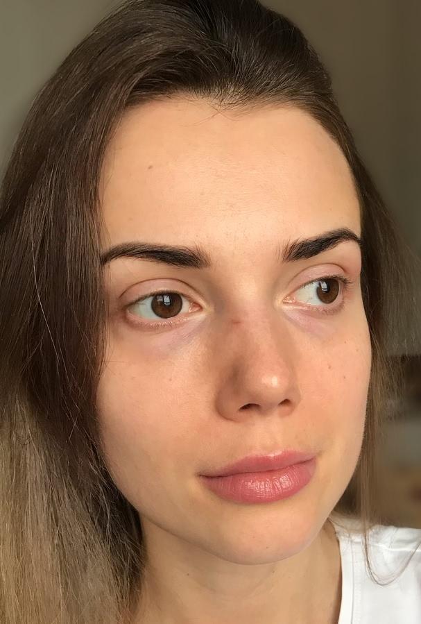 Слезная борозда: фото до и после, коррекция в домашних условиях, заполнение гиалуроновой кислотой