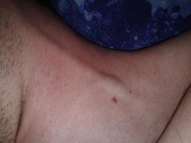 Тромбоз яремной вены: причины, симптомы, лечение, профилактика