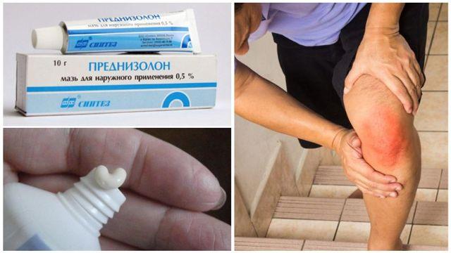 Эффектиные мази и гели от артроза тазобедренного, коленного суставов, стопы: обезболивающие, хондропротекторы, согревающие