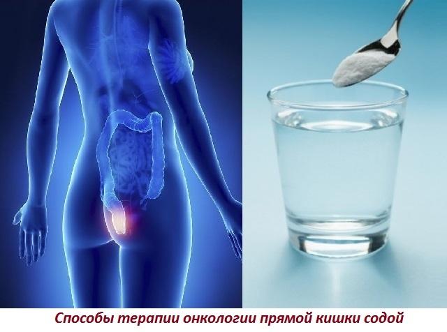 Содовая клизма от паразитов, при раке прямой кишки и ацетоне: по Неумывакину и Огулову, отзывы