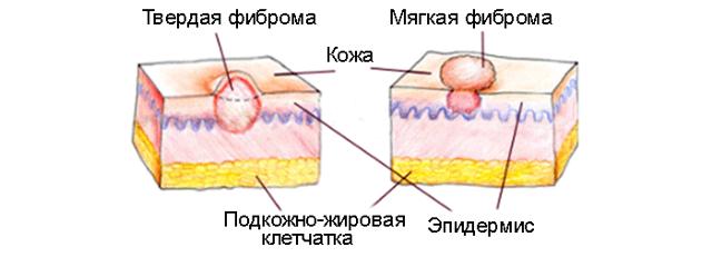 Фиброма: фото, симптомы, причины возникновения, лечение без операции, удаление, цена, отзывы