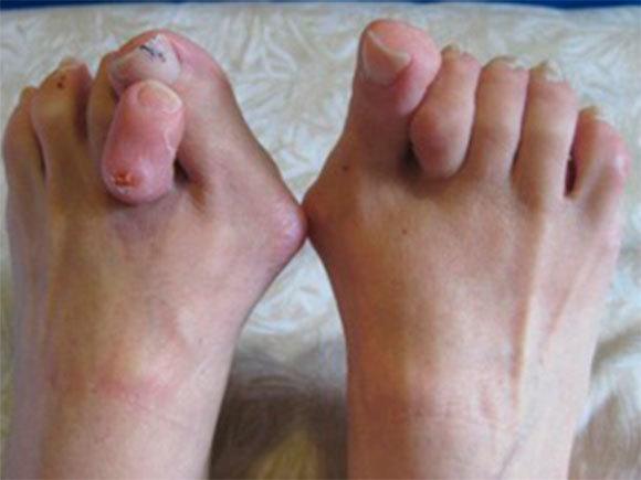 hallux valgus большого пальца 1, 2, 3, 4 степени: МКБ-10, реабилитация после операции, отзывы о лечении, фиксаторы