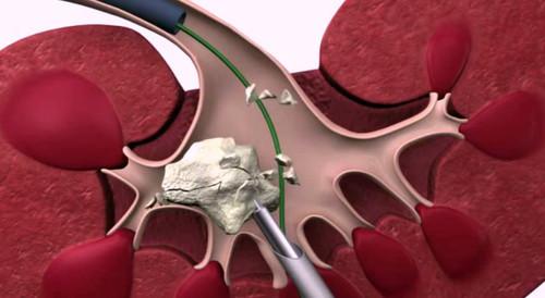 Чрескожная пункционная (перкутанная) нефролитотомия: показания, ход операции, восстановление и противопоказания