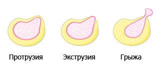 Что такое экструзия дисков позвоночника шейного и поясничного отдела: сублигаментарная, дорзальная, парамедианная