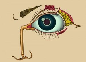 Цилиндрома (аденокистозная карцинома): кожи, твердого неба, околоушной слюнной железы