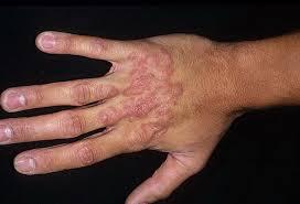 Фитотерапия при кожных заболеваниях (в дерматологии): при аллергии, при раке, при грибке, при ожогах