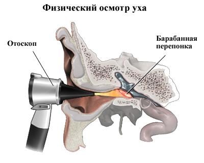 Травма уха: от удара, акустическая, ватной палочкой, механическая, лечение