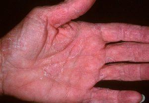 Эксфолиативный дерматит: лечение, диагностика, причины появления, симптомы