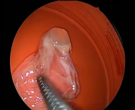 Удаление кисты гайморовой пазухи: эндоскопическая операция, видео