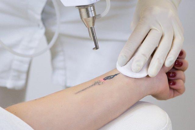 Удаление тату лазером: цена, реабилитационный период, отзывы, осложнения, техника