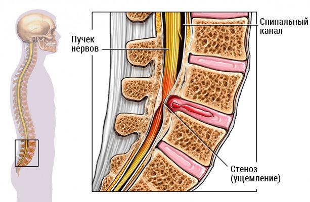 Стеноз позвоночного канала: абсолютный и относительный шейного, грудного, поясничного отделов, симптомы, лечение