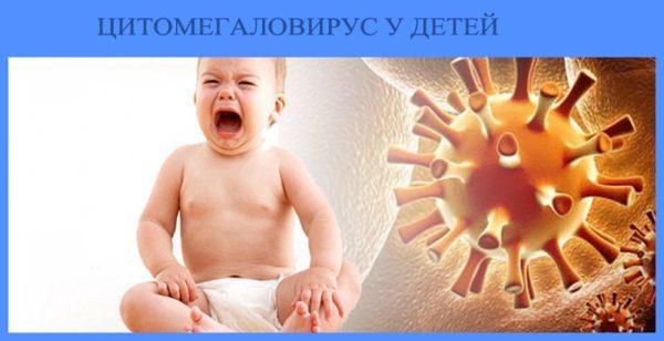 Цитомегаловирус у детей и взрослых: лечение, симптомы, препараты