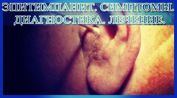 Эпитимпанит: симптомы хронической гнойной формы, осложнения, лечение