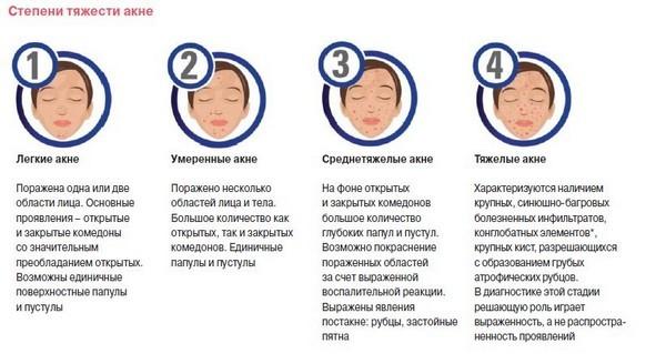 Степени тяжести и стадии угревой болезни: 1, 2, 3, 4