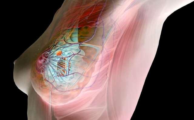 Фиброзно-железистая мастопатия молочной железы: причины, симптомы, диагностика, лечение и прогноз