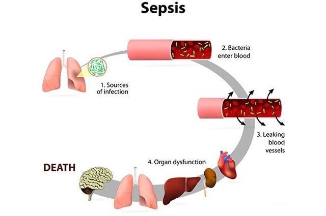 Тяжелый сепсис (септикопиемия): диагностика, прогноз, лечение, симптомы
