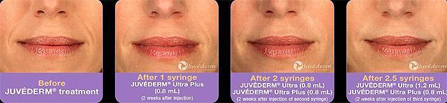Ювидерм (juvederm): инструкция по применению, состав, форма выпуска, показания, цена, отзывы