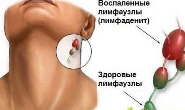 Что показывает УЗИ уха: как проводится процедура, диагностическая ценность