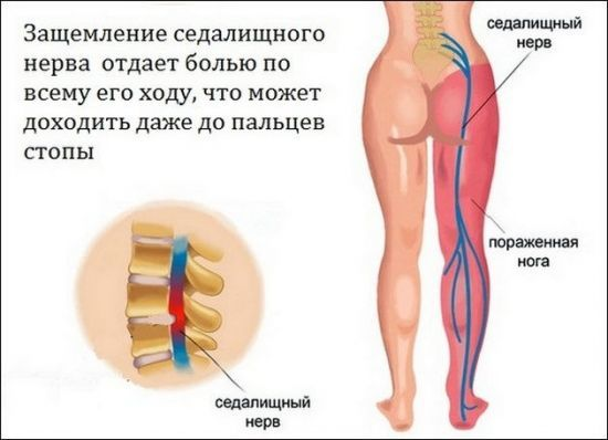 Что делать, если защемило нерв в спине: в пояснице и отдает в ногу, под лопаткой, симптомы при беременности