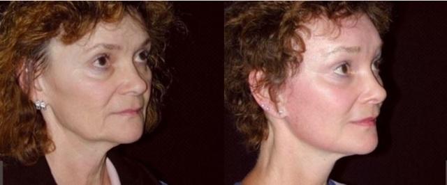 Эндоскопическая подтяжка средней зоны лица: отзывы, цена, фото, проведение, реабилитация
