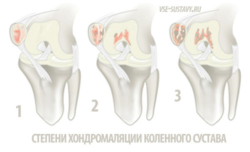 Хондромаляция надколенника или медиального мыщелка коленного сустава 1, 2, 3, 4 степени: симптомы и стадии, МКБ-10, лечение
