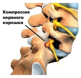 Спондилолистез (смещение позвоночника) шейного отдела у ребенка: симптомы, лечение