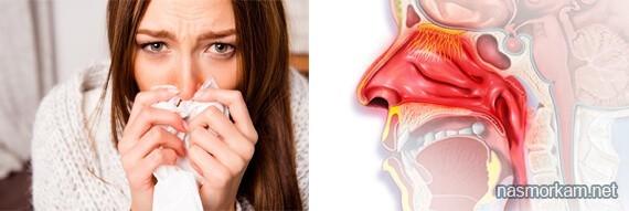 Хронический атрофический ринит у взрослых и детей: симптомы, лечение