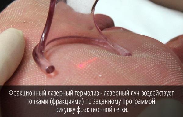 Фракционный фототермолиз: отзывы, цена, фото, показания и противопоказания, уход после проведения