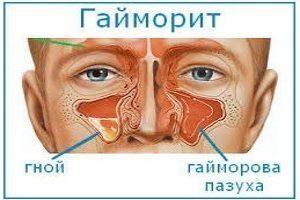 Хронический гипертрофический ринит: симптомы, лечение, код по МКБ-10