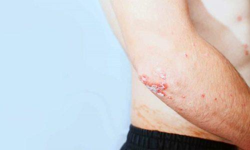 Экссудативный псориаз: причины возникновения, симптомы, лечение, диагностика