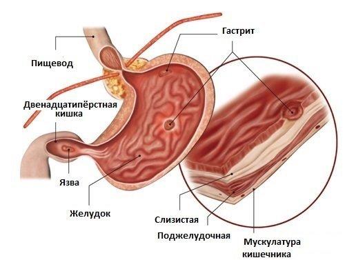 Хронический и острый алкогольный гастрит: симптомы, лечение, профилактика