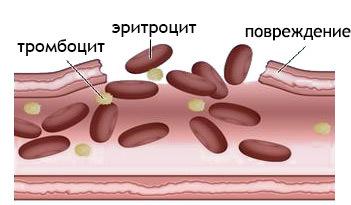 Экхимозы у детей и взрослых: на коже, во рту, после уколов