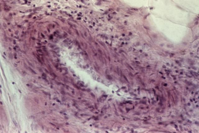 Узелковый периартериит (полиартериит) у детей и взрослых: симптомы, лечение, форма, диагностика