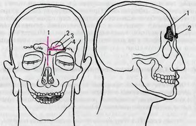 Трепанопункция лобной пазухи при фронтите: отзывы, последствия, методика