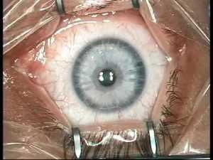 Энуклеация глазного яблока, аденомы простаты, кисты яичника, молочной железы и миоматозных узлов