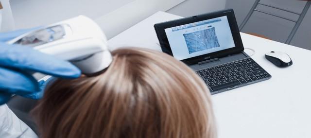 Трихоскопия волос: цена, показания, виды, отзывы, результаты