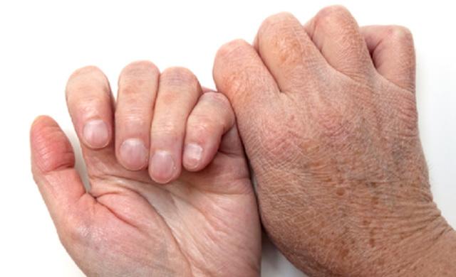 Сухая (астеатотическая) экзема: лечение, прогноз, симптомы, диагностика, причины