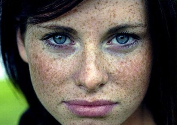 Хроностарение кожи: виды, фото, признаки, лечение, упражнения, маски