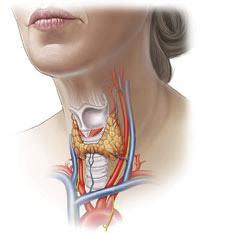 Тиреоидэктомия щитовидной железы: показания, ход операции, последствия, послеоперационный период