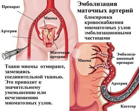 Эмболизация маточных артерий при миоме матки: цена, отзывы результатов ЭМА