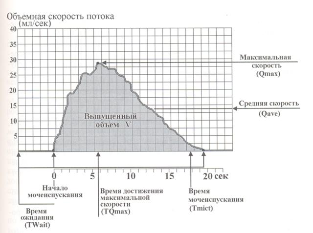Урофлоуметрия: показания, как подготовиться и как проводится, расшифровка, норма