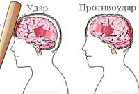 Ушиб головного мозга: степени, причины, симптомы и признаки, лечение и последствия
