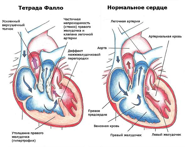 Тетрада Фалло у новорожденных детей и плода: операция, прогноз, лечение, диагноз