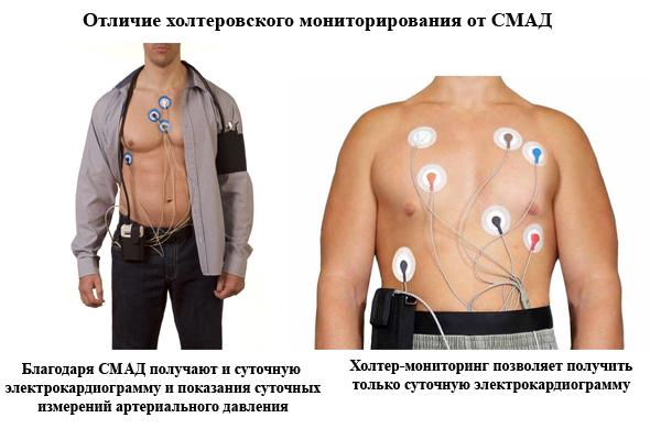 Суточное мониторирование артериального давления (АД): результат, расшифровка, цена