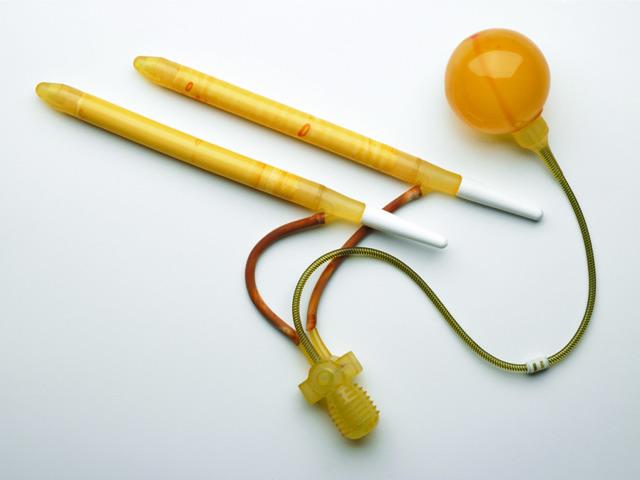 Фаллопротезирование члена: показания, какие протезы и как подбираются, ход операции