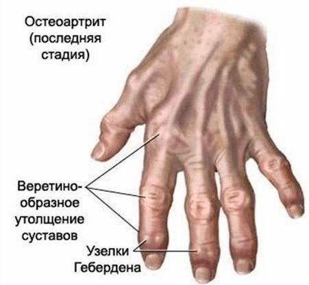 Мазь от шишек на пальцах рук