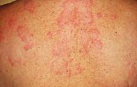 Стронгилоидоз: возбудитель, пути заражения, симптомы, диагностика, лечение, профилактика